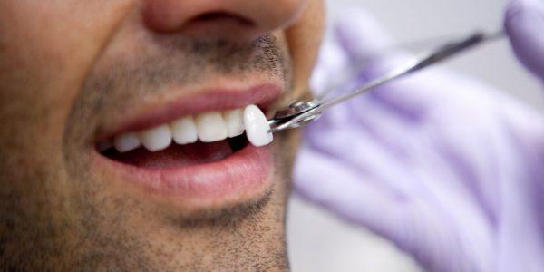 dental-veneers-min-1030x687